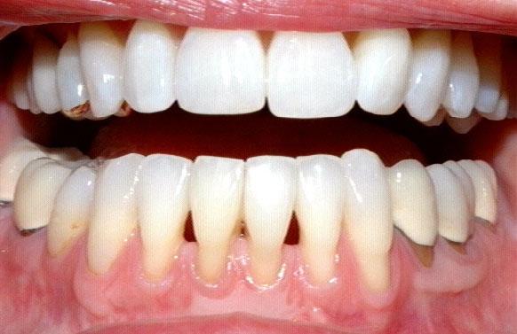 Atlanta Cosmetic Dentistry - Dr. Mastro, Alluring Cosmetic ...