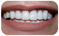 Atlanta Cosmetic Dentistry
